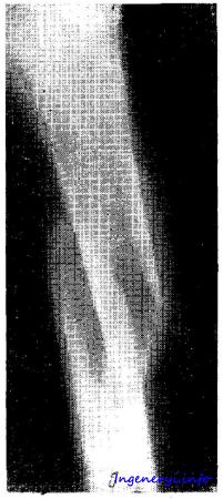Переломы костей нижних конечностей » Портал инженера